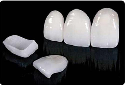 کشف ۳ هزار عدد کامپوزیت دندانپزشکی غیر مجاز به ارزش ۶ میلیارد ریال در اورمیه